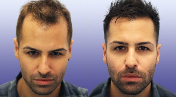 Hair restoration turkey Procedures & Costs